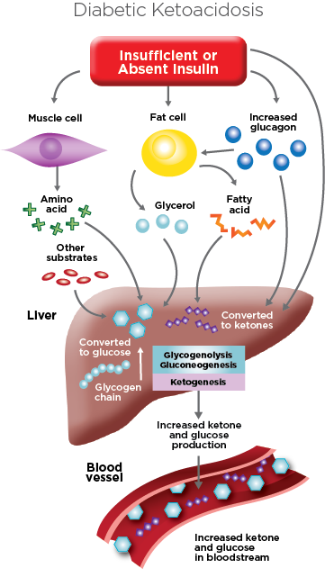 diabetic ketoacidosis illustration