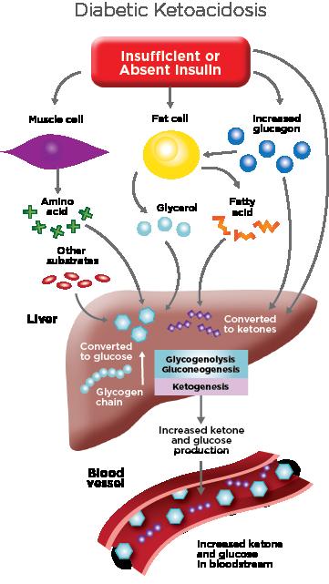 diabetic ketoacidosis illustration